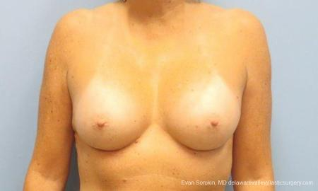 Philadelphia Breast Augmentation 9600 -  After Image 1