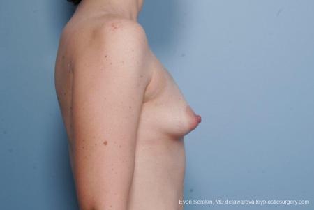 Philadelphia Breast Lift and Augmentation 8686 - Before Image 4