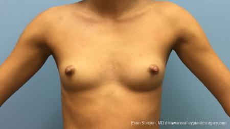 Philadelphia Breast Augmentation 13176 - Before Image 1