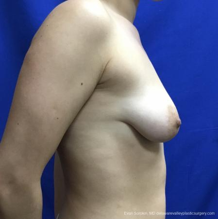 Breast Lift And Augmentation: Patient 40 - Before and After Image 3