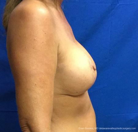 Philadelphia Breast Lift and Augmentation 13068 -  After Image 3