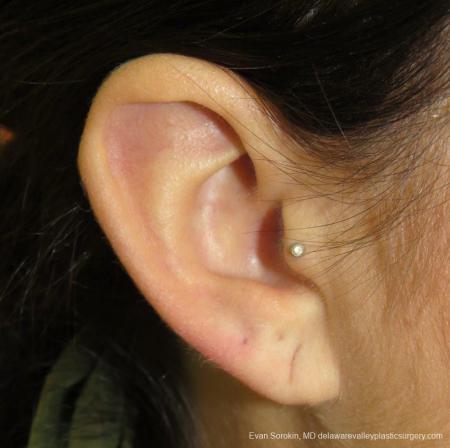 Philadelphia Earlobe Surgery 9384 - Before Image 1