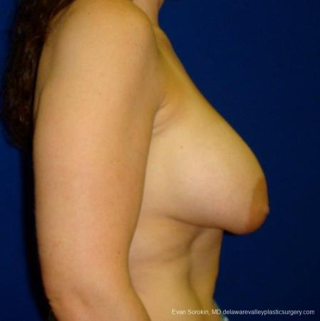 Philadelphia Breast Augmentation 8695 - Before and After Image 4