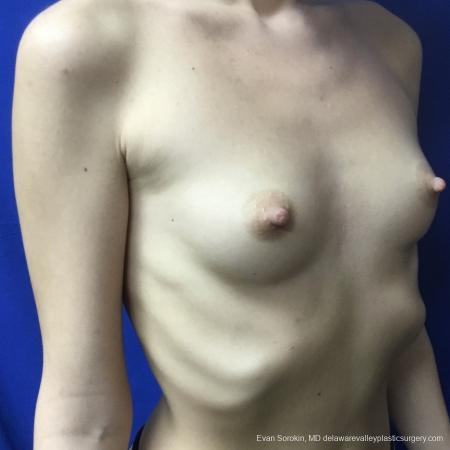 Breast Augmentation: Patient 166 - Before Image 2