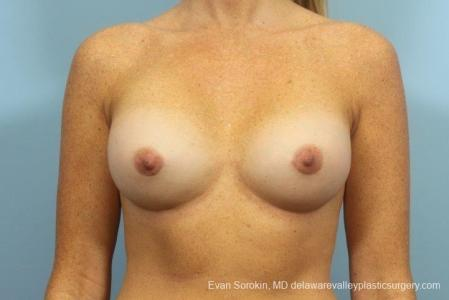 Philadelphia Breast Augmentation 8654 -  After Image 1