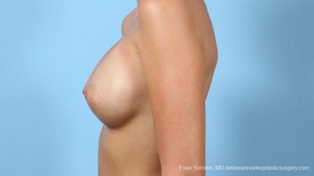 Philadelphia Breast Augmentation 9292 -  After Image 4