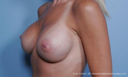 Philadelphia Breast Augmentation 9454 -  After Image 4