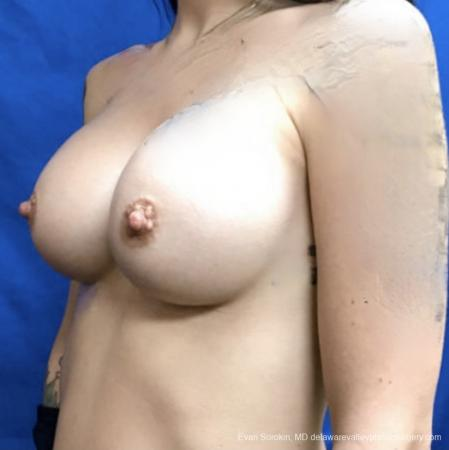 Breast Augmentation: Patient 161 - After Image 3