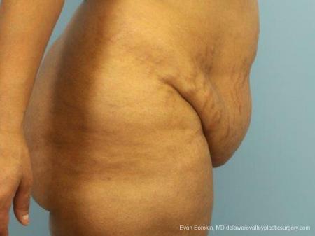 Philadelphia Abdominoplasty 9462 - Before Image 3