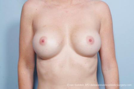 Philadelphia Breast Augmentation 9402 - Before Image 1