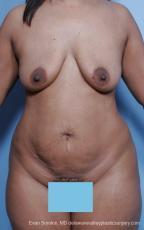 Philadelphia Mommy Makeover 8691 - Before Image