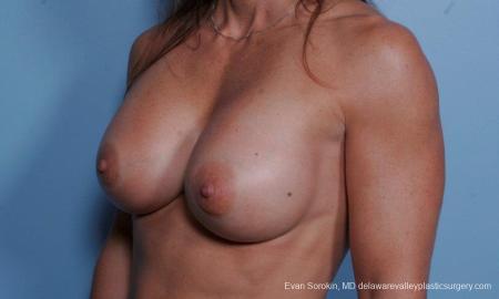 Philadelphia Breast Augmentation 9455 -  After Image 4