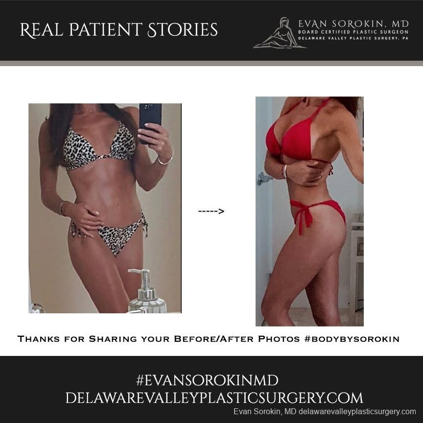 Real Patient Stories: Patient 8 - Before and After Image