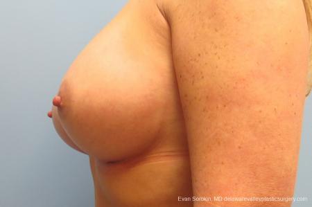 Philadelphia Breast Augmentation 9406 -  After Image 5