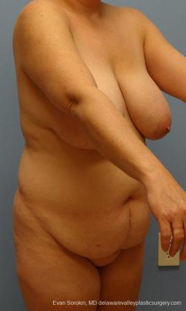 Philadelphia Mommy Makeover 9429 - Before Image 2