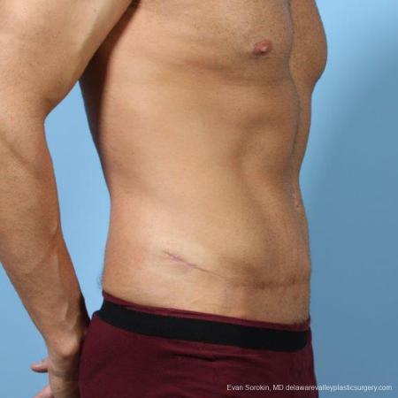 Philadelphia Abdominoplasty 9468 -  After Image 2