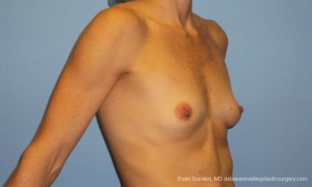Philadelphia Breast Augmentation 10248 - Before Image 2
