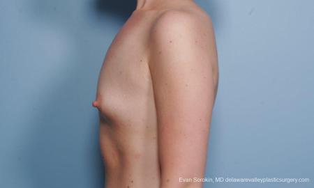 Philadelphia Breast Augmentation 9176 - Before Image 3