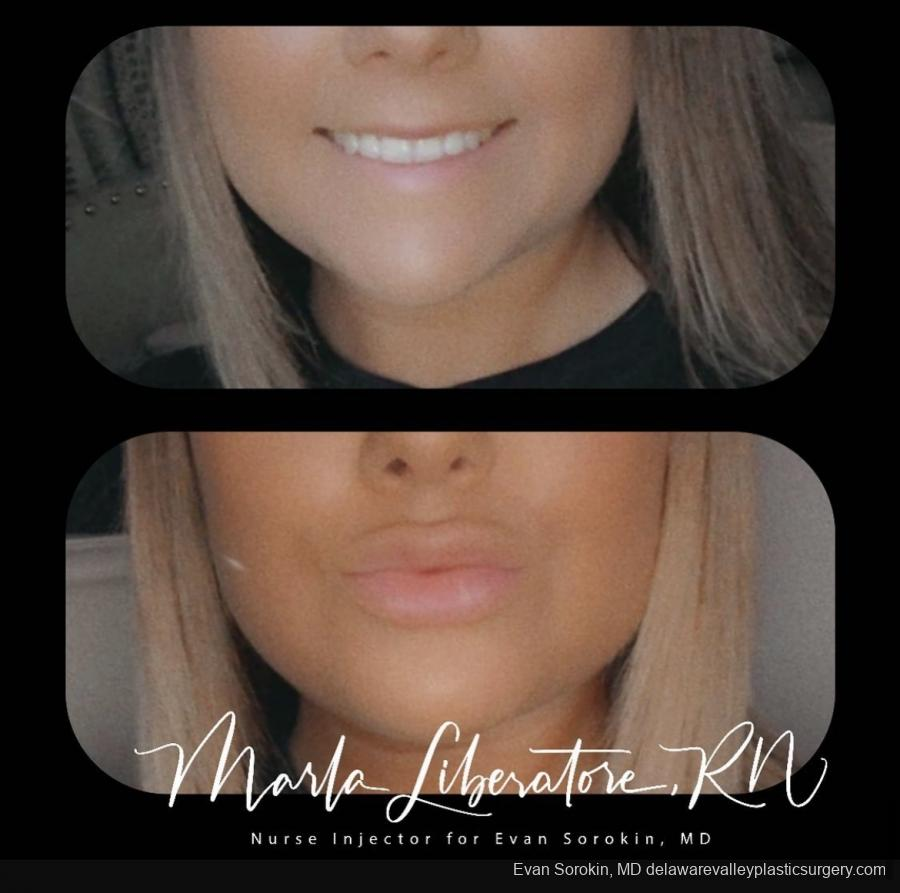 Lip Augmentation: Patient 21 - Before and After Image 1