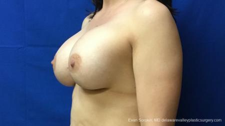 Philadelphia Breast Augmentation 12541 -  After Image 3