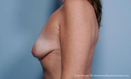 Philadelphia Breast Lift and Augmentation 9438 - Before and After Image 5