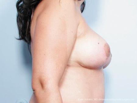 Philadelphia Breast Reduction 9441 -  After Image 3