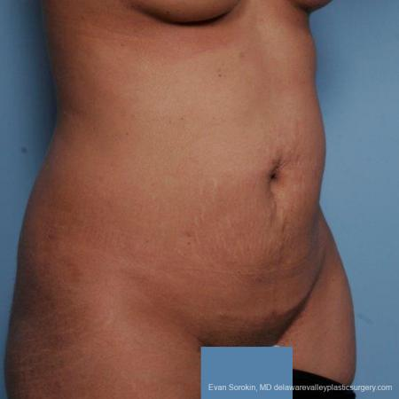 Philadelphia Abdominoplasty 9479 - Before Image 2