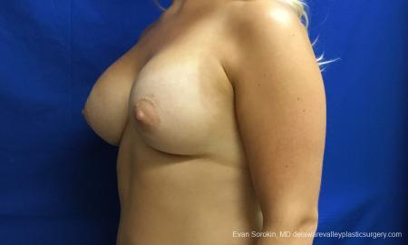Philadelphia Breast Augmentation 12517 -  After Image 3