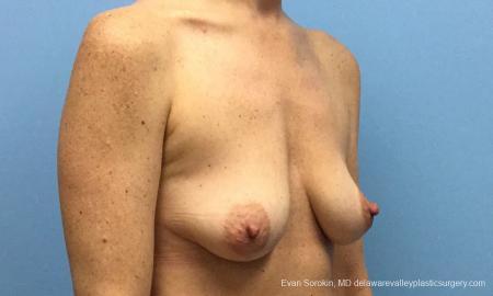 Philadelphia Breast Lift and Augmentation 10814 - Before Image 2