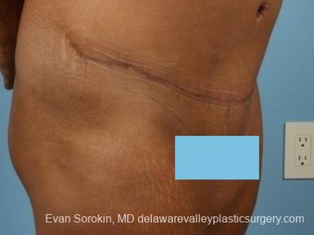 Philadelphia Abdominoplasty 8700 -  After Image 2