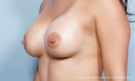 Philadelphia Breast Augmentation 9297 -  After Image 4