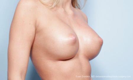 Philadelphia Breast Augmentation 9177 -  After Image 4