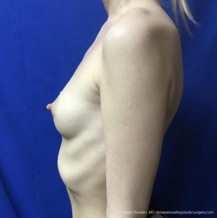 Breast Augmentation: Patient 166 - Before and After Image 5