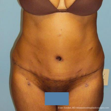 Philadelphia Abdominoplasty 9472 -  After Image 1