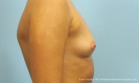 Philadelphia Breast Augmentation 9183 - Before Image 3