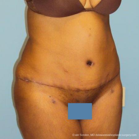 Philadelphia Abdominoplasty 9472 -  After Image 2