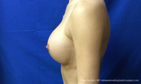 Philadelphia Breast Augmentation 10816 -  After Image 5