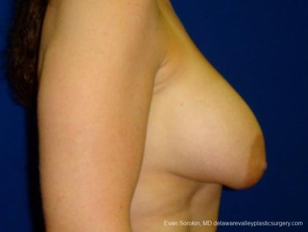 Philadelphia Breast Lift and Augmentation 8696 - Before and After Image 4
