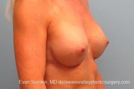 Philadelphia Breast Augmentation 8770 -  After Image 2