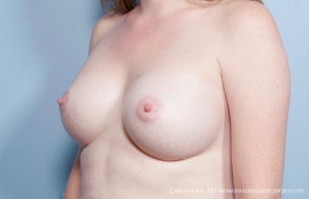 Philadelphia Breast Augmentation 8795 -  After Image 3