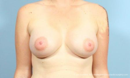 Philadelphia Breast Augmentation 9346 -  After Image 1