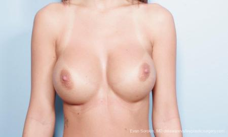 Philadelphia Breast Augmentation 9445 -  After Image 1