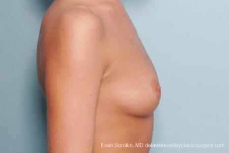 Philadelphia Breast Augmentation 8792 - Before Image 4