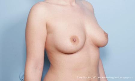 Philadelphia Breast Augmentation 9172 - Before Image 2
