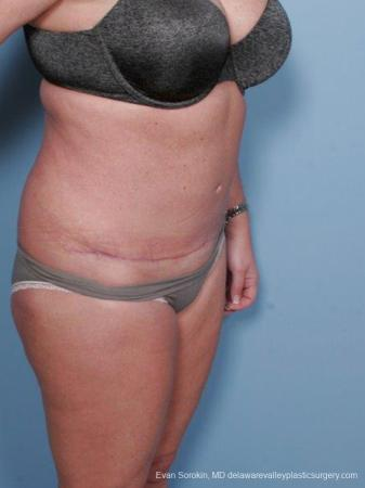 Philadelphia Abdominoplasty 9463 -  After Image 2