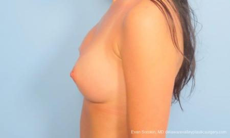 Philadelphia Breast Augmentation 9181 -  After Image 5