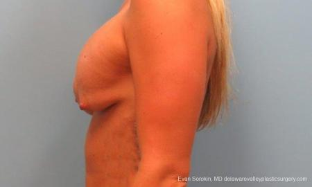 Philadelphia Breast Lift and Augmentation 9370 - Before Image 3