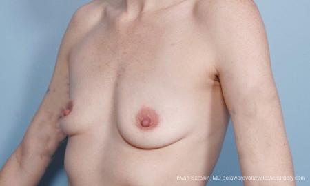 Philadelphia Breast Augmentation 8649 - Before Image 4