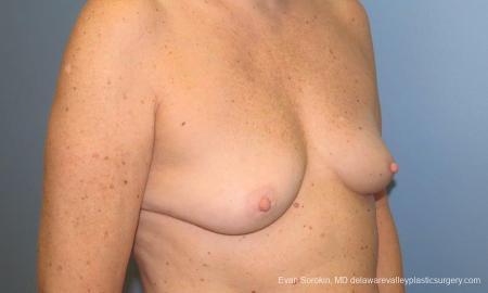 Philadelphia Breast Augmentation 9549 - Before Image 2