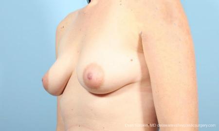 Philadelphia Breast Augmentation 9346 - Before Image 4